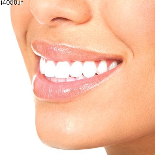 دستگاه سفید کننده دندان 5