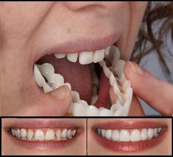 خرید آنلاین لمینت متحرک دندان تک فک